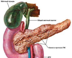 реактивные изменения поджелудочной железы