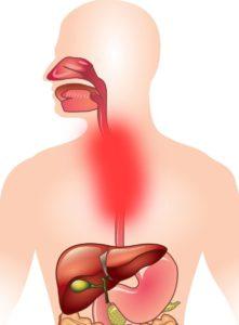 хронический эзофагит