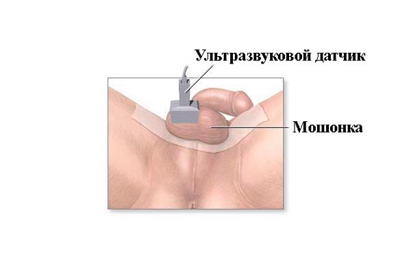Диагностирование олигоспермии с помощью УЗИ яичек