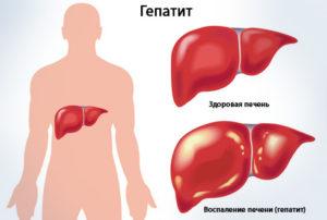 гепатит в как передается