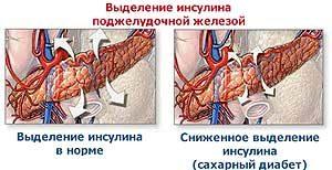 выделение инсулина