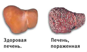 хронический гепатит с сколько с ним живут