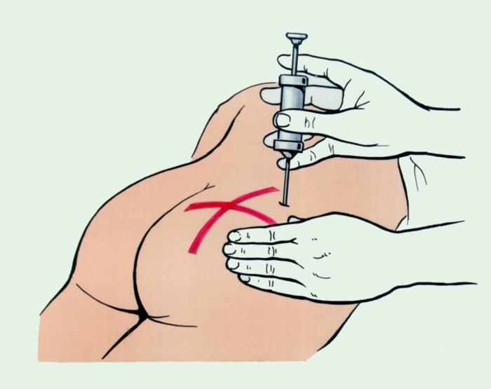 пирогенал в гинекологии