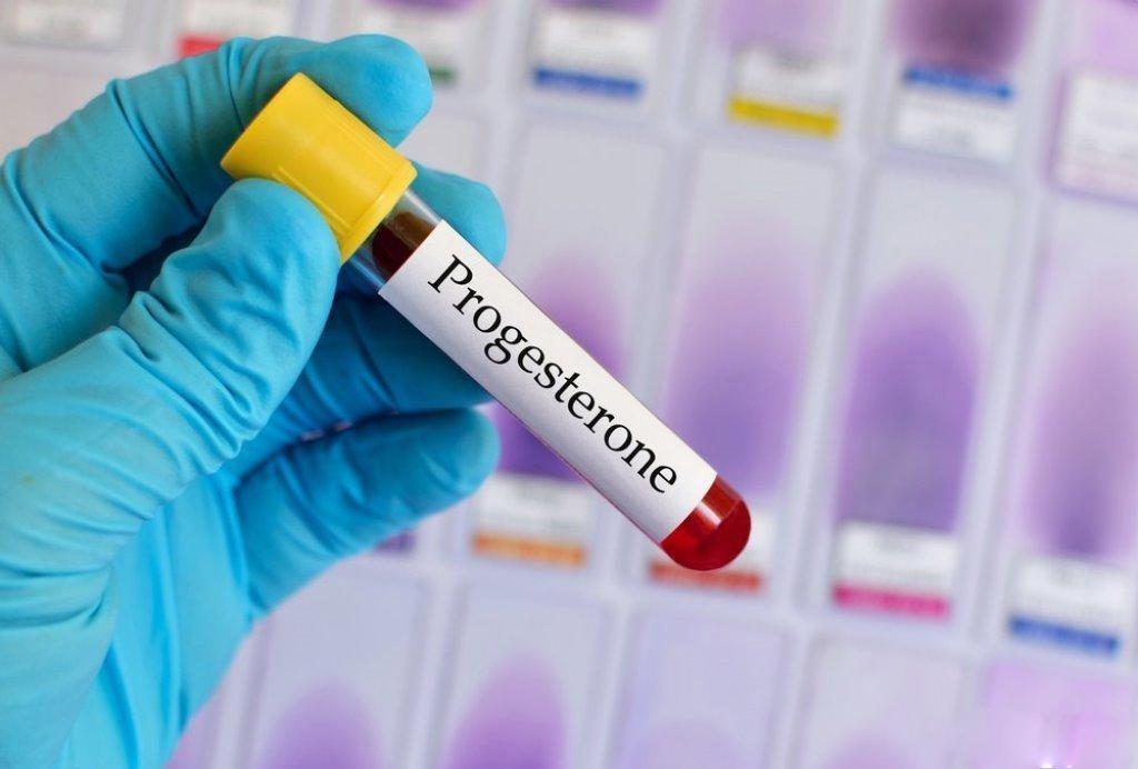 Определение уровня прогестерона у человека