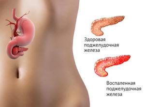 Здоровая поджелудочная и панкреатит