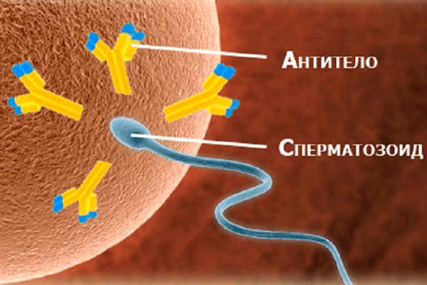 Проблемы с зачатием в следствии иммунологического бесплодия