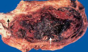 Больная поджелудочная железа