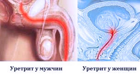 Симптомы уретрита у Женщин и мужчин