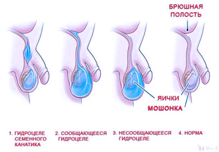 Проявление гидроцеле яичка