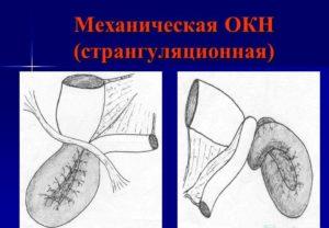 Лечение кишечной непроходимости
