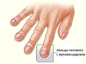 пальцы при заболевании