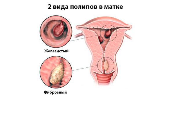 Виды полипов шейки матки