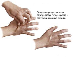 определение сухости кожи