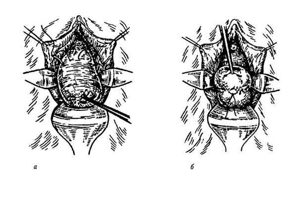 Схема операции по наложению швов на шейку матки