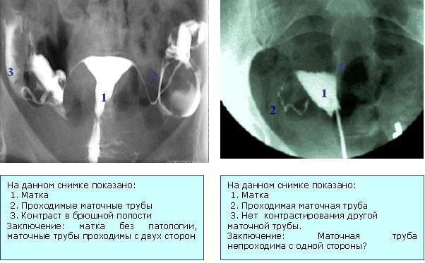 снимок проходимости маточных труб
