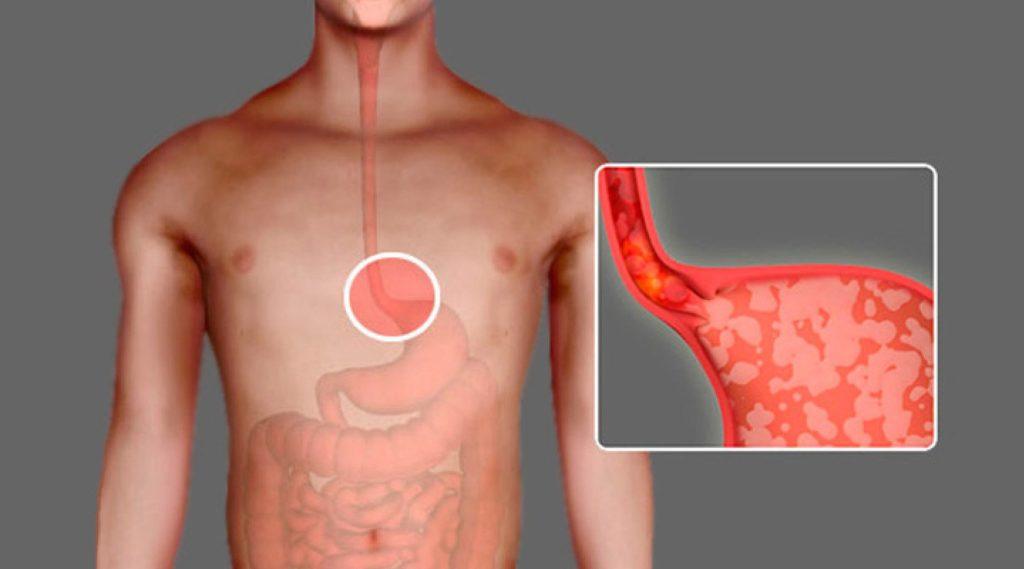 воспаление пищевода лечение