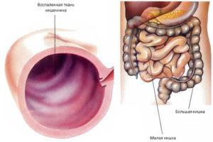 Воспаленная ткань кишечника
