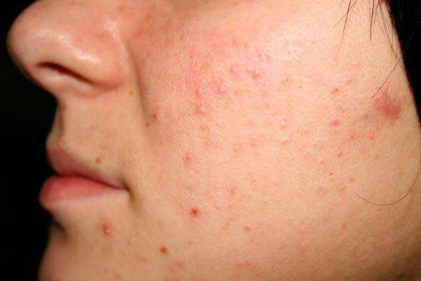 Угревая сыпь, как один из симптомов повышенного пролактина