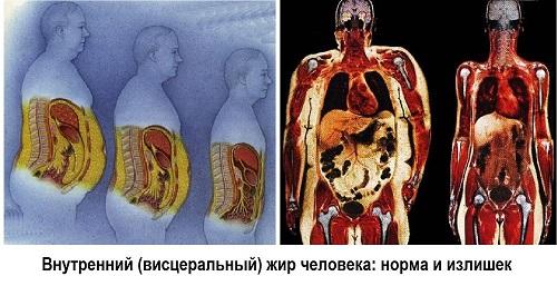 10 причин больших животов (кроме беременности): &quot,сама худая, а живот торчит&quot,