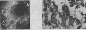 Стадии эзофагита
