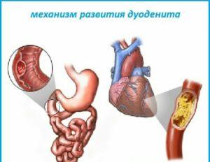 Механизм развития дуоденита