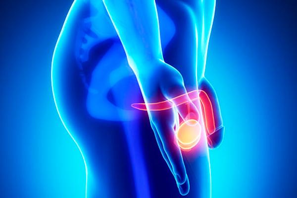 Орхит - как одна из причин нарушения нормы лейкоцитов в эякуляте